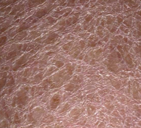 extremely dry skin on legs