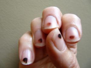 Black Spots on Nails: Causes, under Fingernails, Dots, Tiny Lines ...