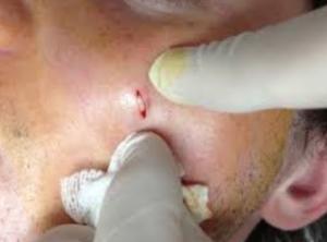 Facial sebaceous cyst