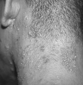 Shingles On Scalp Symptoms Pictures Contagious No Rash