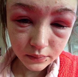 Swollen Eyebrow Causes: Waxing, Botox, (Lump, Pimple ...