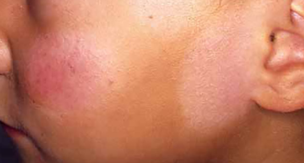 White Patches On Face Pictures Causes Fungus Treat