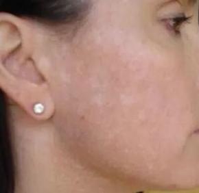 fungus on facial area