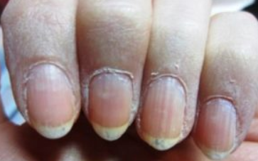 Dry Skin Around Nails Causes Vitamin Deficiency How To Fix Cure Remedy