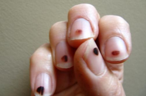 Black Spots On Nails Causes Under Fingernails Dots Tiny Lines Toenails Fungus Get Rid